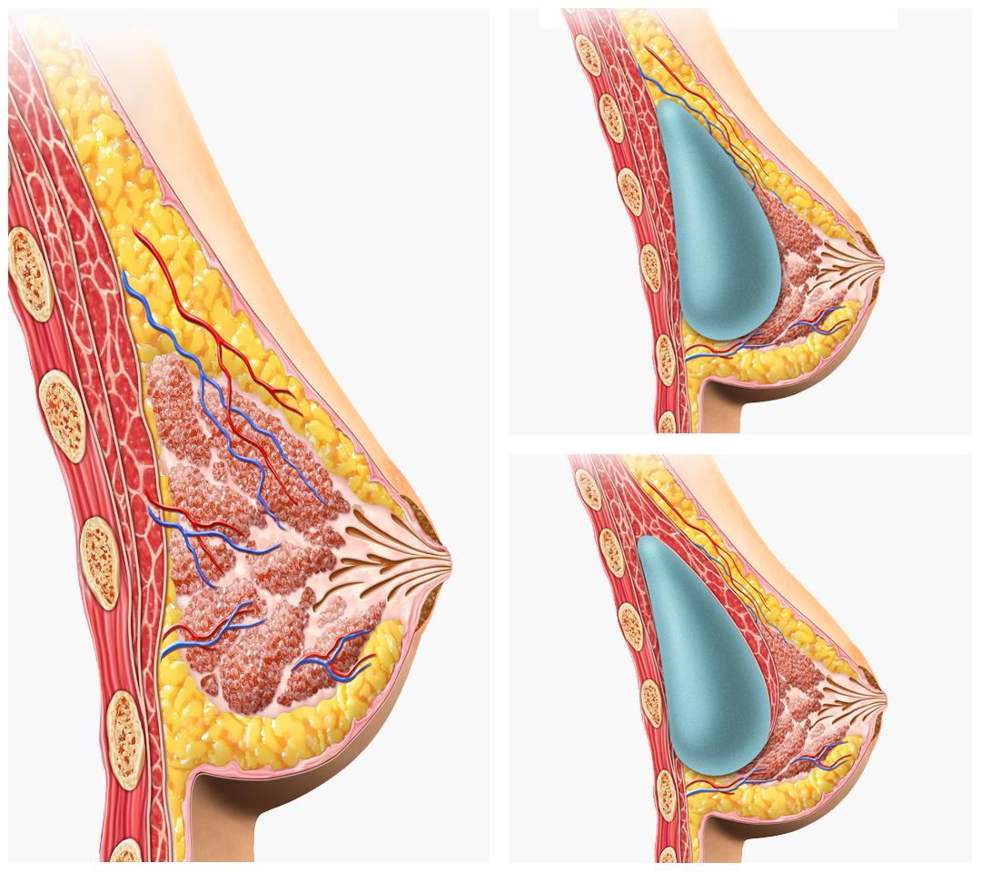 Dem Symptom der Thrombose der Beine