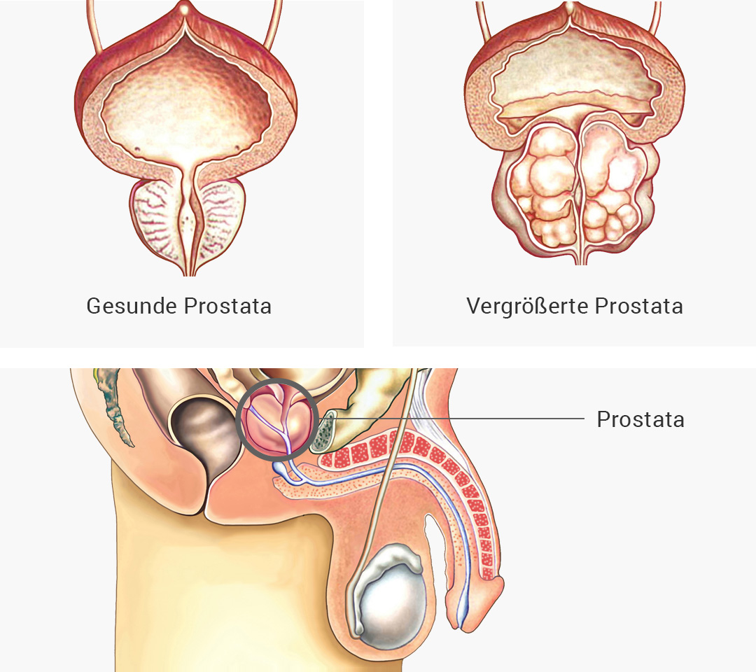 Gutartige Vergrößerung der Prostata | Klinikum Forchheim