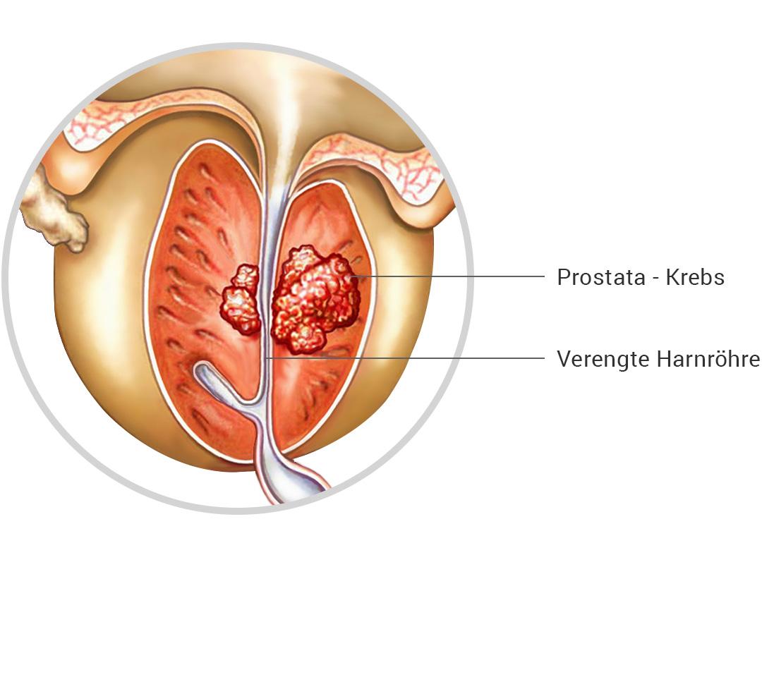 Fantastisch Prostata Ultraschall Anatomie Bilder - Menschliche ...
